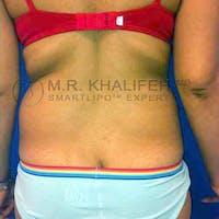 Midback-Bra Line Lipo Gallery - Patient 3761602 - Image 1