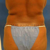 Midback-Bra Line Lipo Gallery - Patient 3761619 - Image 1