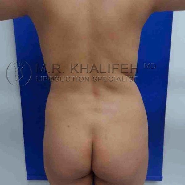 Midback-Bra Line Lipo Gallery - Patient 3761627 - Image 1