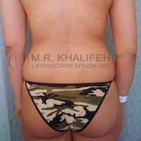 Midback-Bra Line Lipo Gallery - Patient 3761666 - Image 1