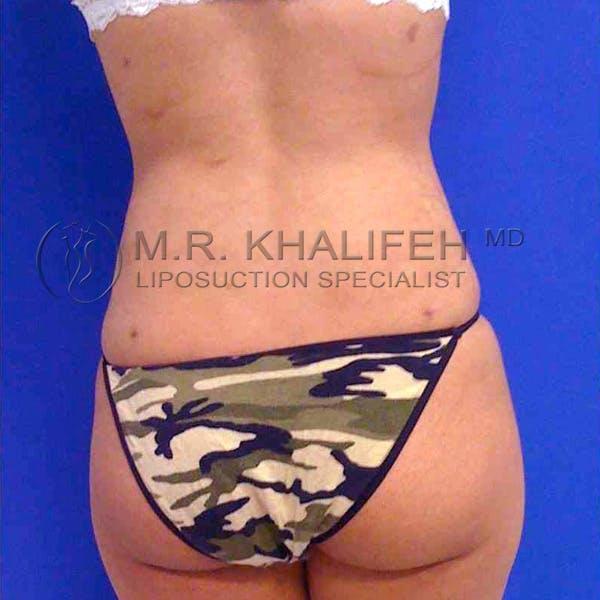 Midback-Bra Line Lipo Gallery - Patient 3761666 - Image 2