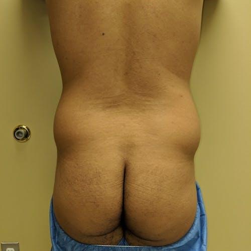Midback-Bra Line Lipo Gallery - Patient 3761677 - Image 1