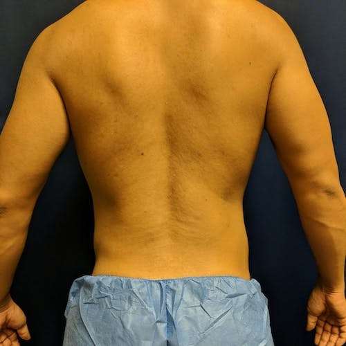 Midback-Bra Line Lipo Gallery - Patient 3761677 - Image 2
