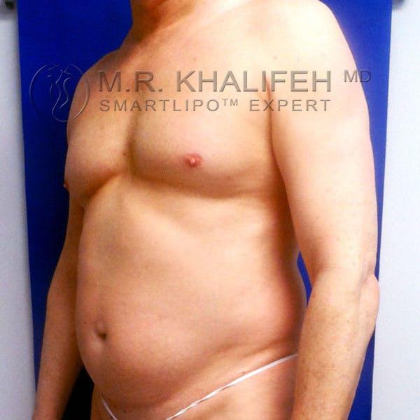 Midback-Bra Line Lipo Gallery - Patient 3761691 - Image 3