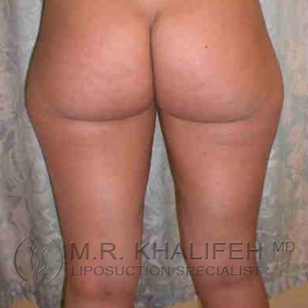 Inner Thigh Liposuction Gallery - Patient 3761700 - Image 3