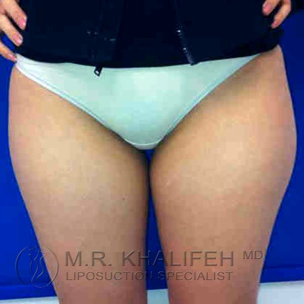 Inner Thigh Liposuction Gallery - Patient 3761709 - Image 1