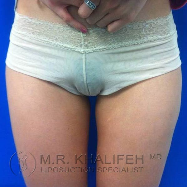 Inner Thigh Liposuction Gallery - Patient 3761709 - Image 2