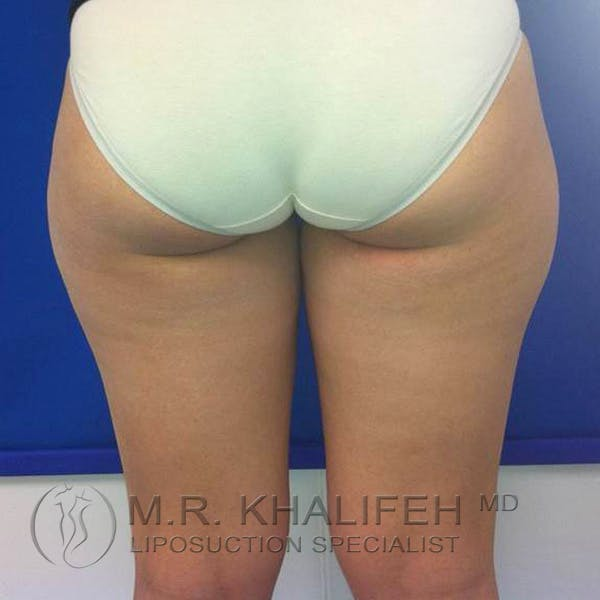 Inner Thigh Liposuction Gallery - Patient 3761709 - Image 3