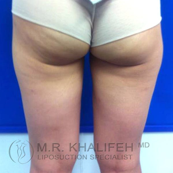 Inner Thigh Liposuction Gallery - Patient 3761709 - Image 4