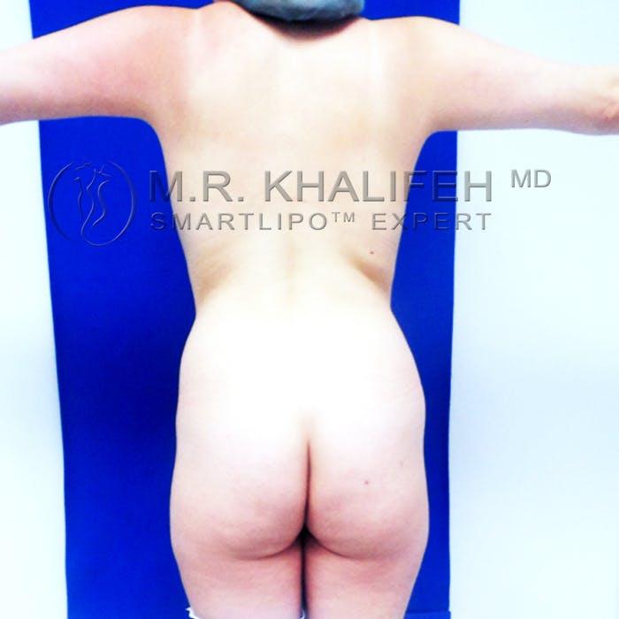 Midback-Bra Line Lipo Gallery - Patient 3761722 - Image 1