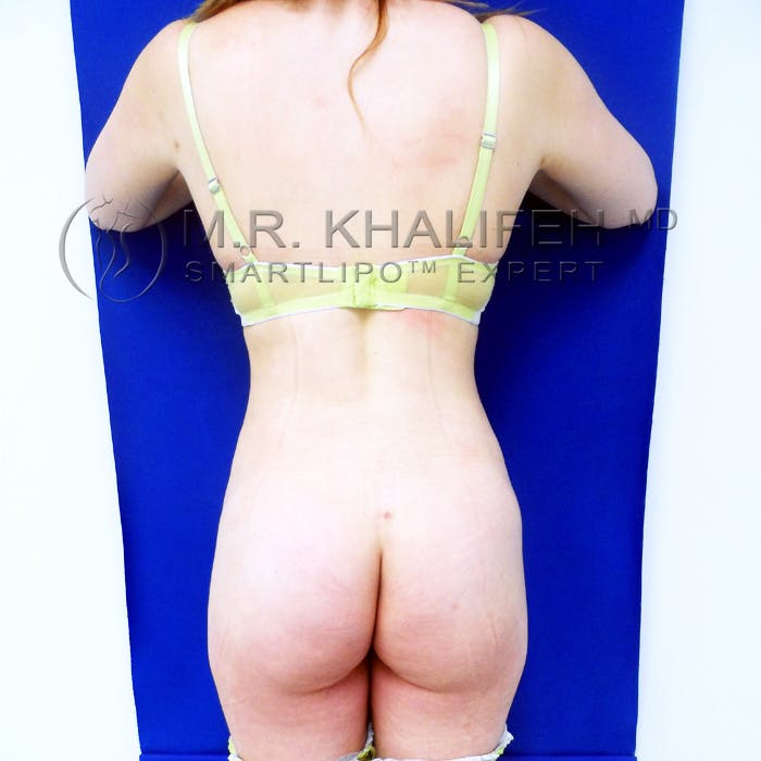 Midback-Bra Line Lipo Gallery - Patient 3761722 - Image 2