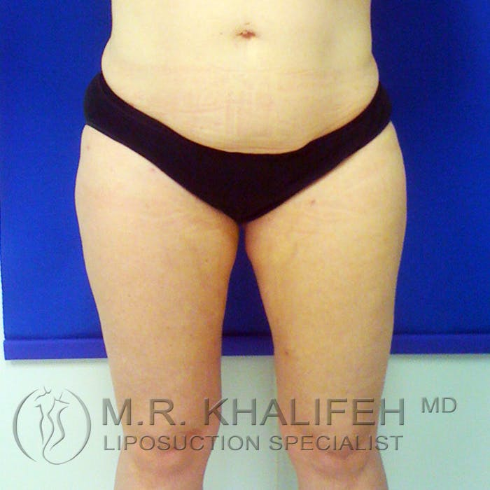 Outer Thigh Liposuction Gallery - Patient 3761723 - Image 2