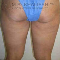 Inner Thigh Liposuction Gallery - Patient 3761719 - Image 1