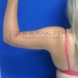 Arm Liposuction Gallery - Patient 3761721 - Image 2