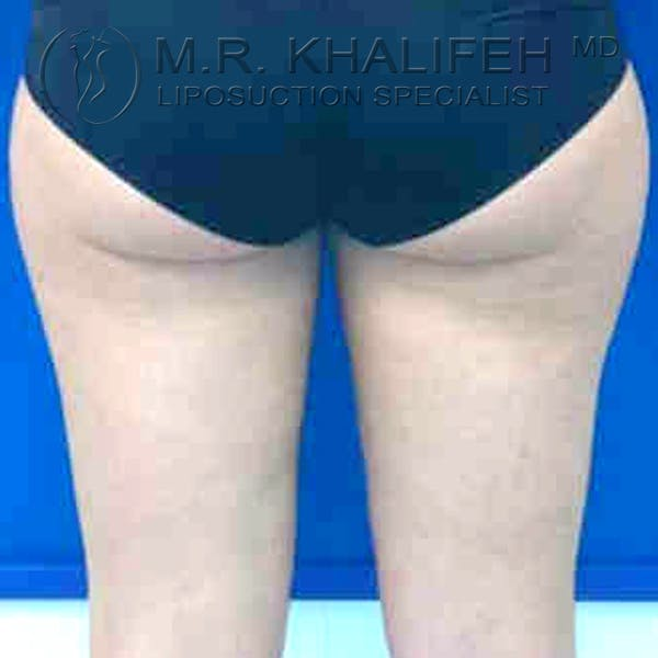 Inner Thigh Liposuction Gallery - Patient 3761724 - Image 4