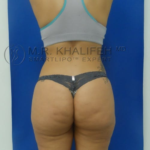 Outer Thigh Liposuction Gallery - Patient 3761730 - Image 2