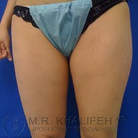 Inner Thigh Liposuction Gallery - Patient 3761727 - Image 1