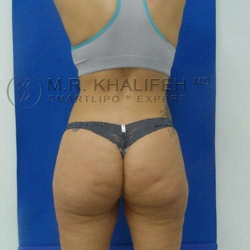 Outer Thigh Liposuction Gallery - Patient 3761730 - Image 4