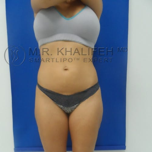 Outer Thigh Liposuction Gallery - Patient 3761730 - Image 6