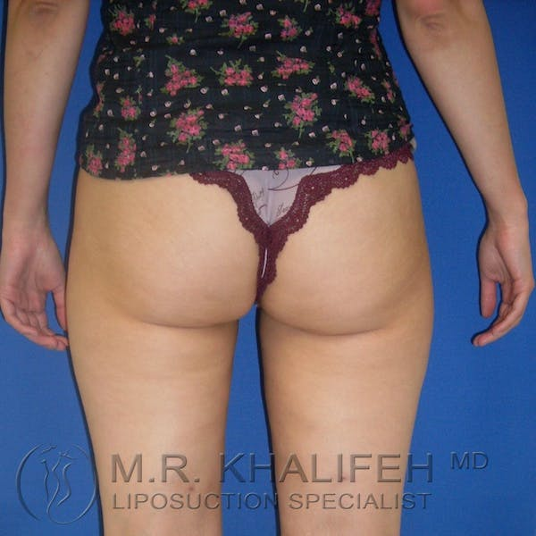 Inner Thigh Liposuction Gallery - Patient 3761727 - Image 4