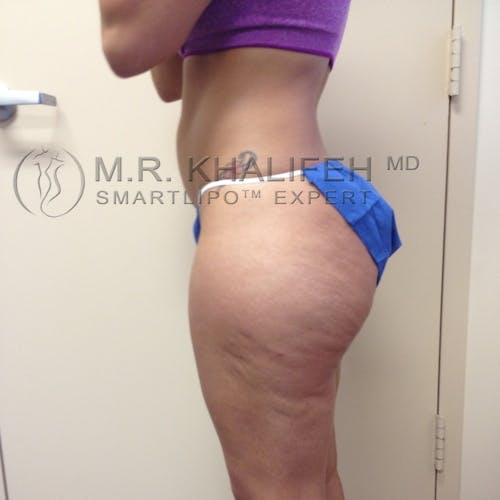Outer Thigh Liposuction Gallery - Patient 3761730 - Image 7