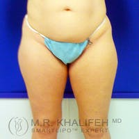Inner Thigh Liposuction Gallery - Patient 3761735 - Image 1