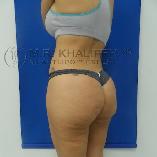Outer Thigh Liposuction Gallery - Patient 3761730 - Image 10
