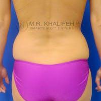 Midback-Bra Line Lipo Gallery - Patient 3761736 - Image 1
