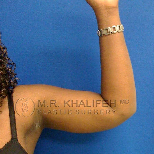 Arm Liposuction Gallery - Patient 3761734 - Image 4
