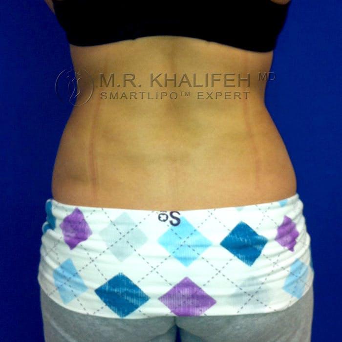 Midback-Bra Line Lipo Gallery - Patient 3761736 - Image 2