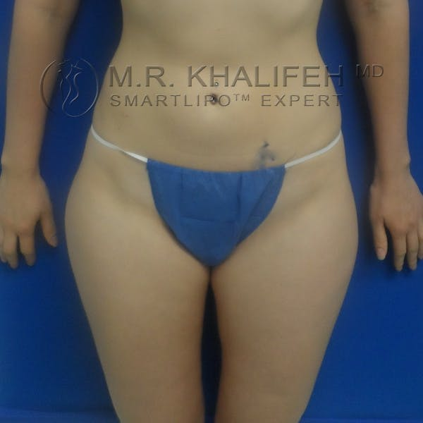 Outer Thigh Liposuction Gallery - Patient 3761739 - Image 1