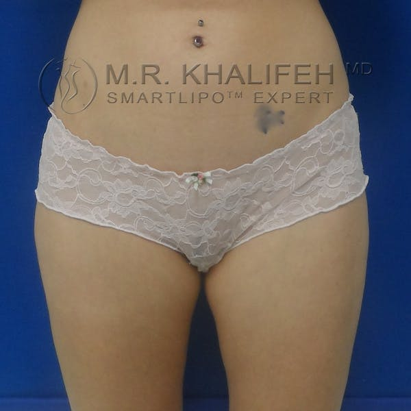Outer Thigh Liposuction Gallery - Patient 3761739 - Image 2