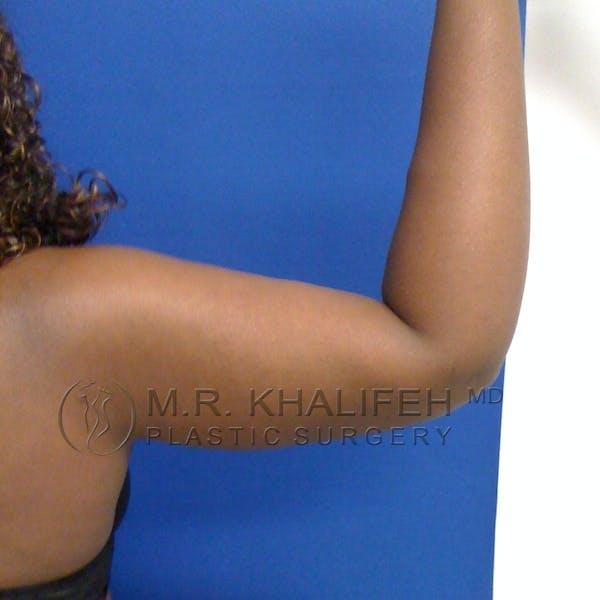 Arm Liposuction Gallery - Patient 3761734 - Image 6