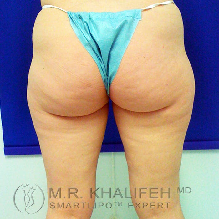 Inner Thigh Liposuction Gallery - Patient 3761735 - Image 5