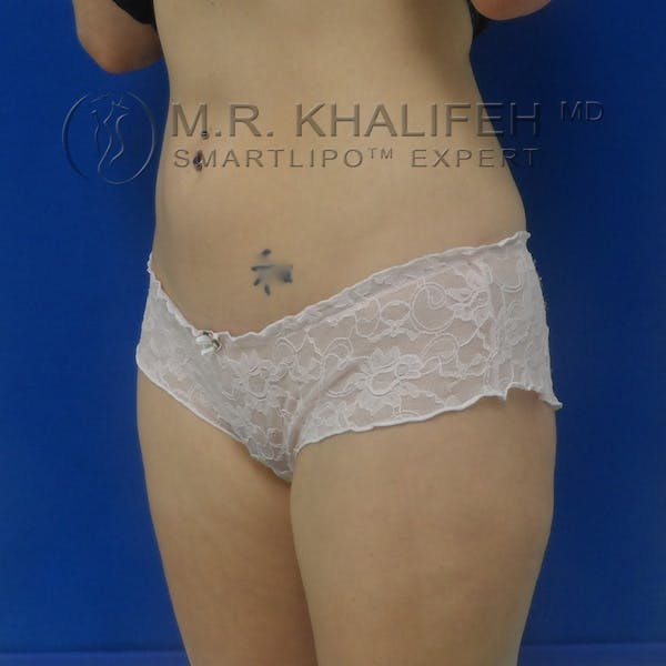 Outer Thigh Liposuction Gallery - Patient 3761739 - Image 4