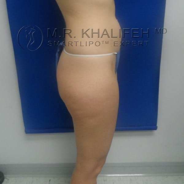 Outer Thigh Liposuction Gallery - Patient 3761739 - Image 7