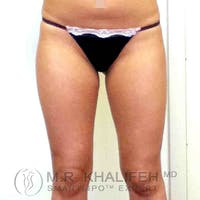 Inner Thigh Liposuction Gallery - Patient 3761742 - Image 1