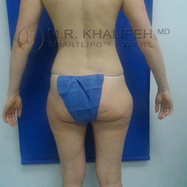 Outer Thigh Liposuction Gallery - Patient 3761739 - Image 9