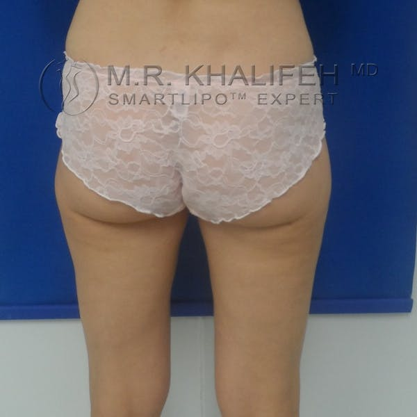 Outer Thigh Liposuction Gallery - Patient 3761739 - Image 10