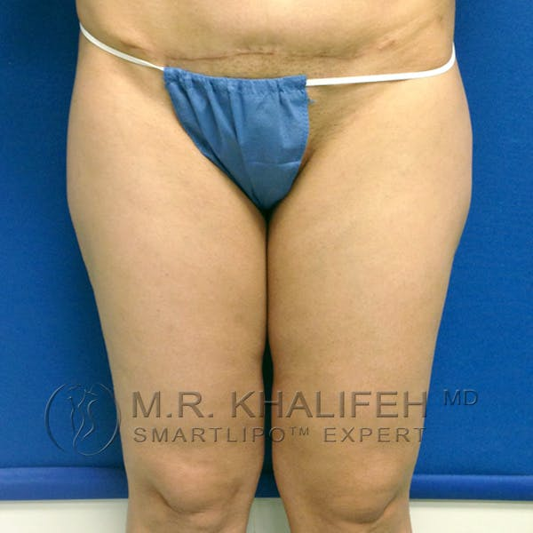 Outer Thigh Liposuction Gallery - Patient 3761750 - Image 1