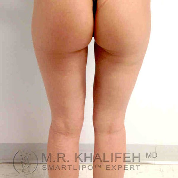 Inner Thigh Liposuction Gallery - Patient 3761742 - Image 6