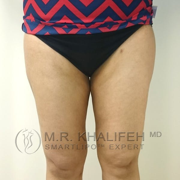 Outer Thigh Liposuction Gallery - Patient 3761750 - Image 2