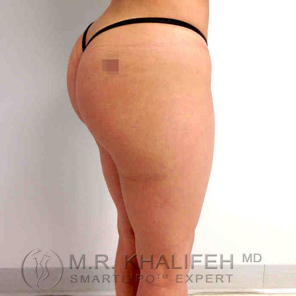Inner Thigh Liposuction Gallery - Patient 3761742 - Image 8