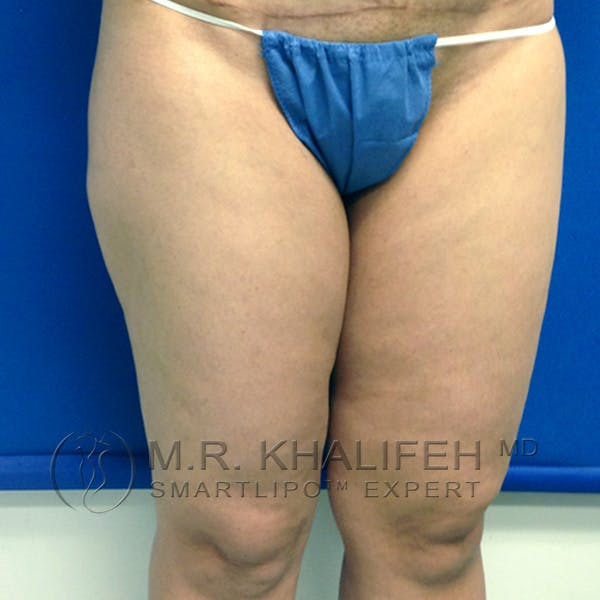 Outer Thigh Liposuction Gallery - Patient 3761750 - Image 3