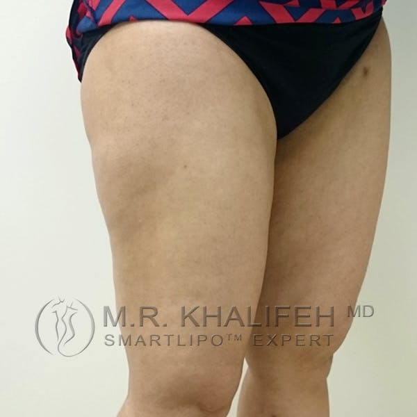 Outer Thigh Liposuction Gallery - Patient 3761750 - Image 4