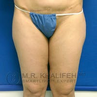Inner Thigh Liposuction Gallery - Patient 3761755 - Image 1