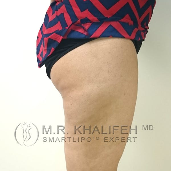 Outer Thigh Liposuction Gallery - Patient 3761750 - Image 6