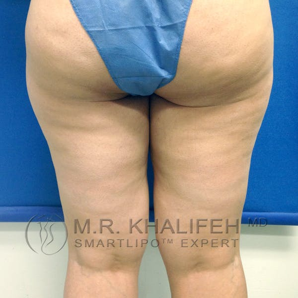 Outer Thigh Liposuction Gallery - Patient 3761750 - Image 7