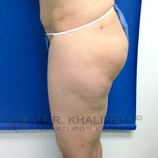 Outer Thigh Liposuction Gallery - Patient 3761750 - Image 9
