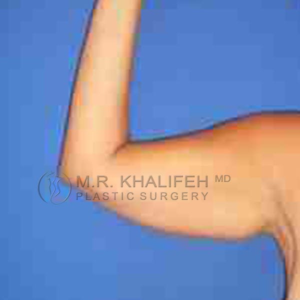 Arm Liposuction Gallery - Patient 3761751 - Image 3